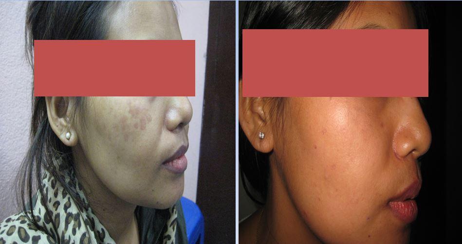 Pimples / Acne (डण्डीफोर)